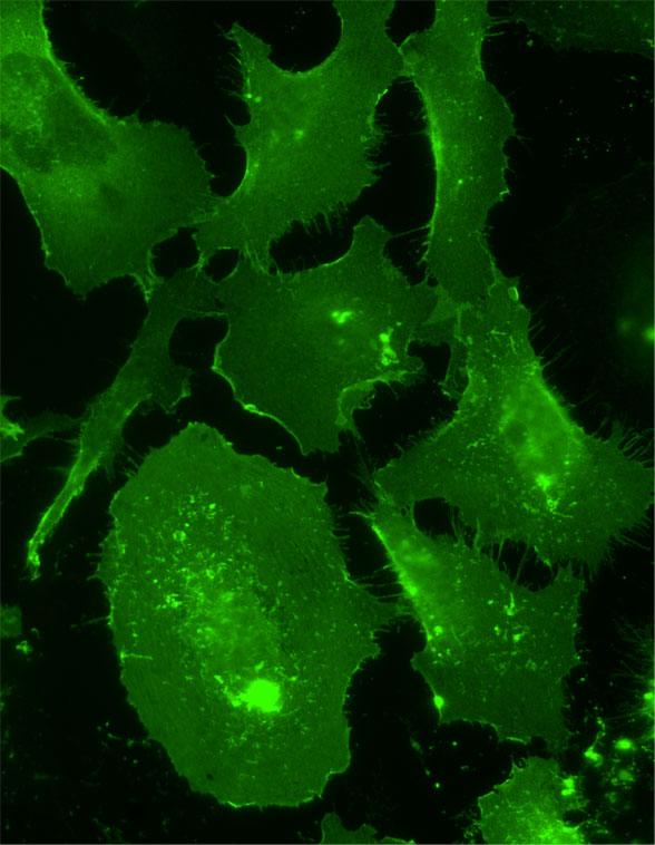 Merlin Immunofluorescence
