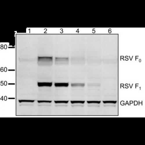 Respiratory Syncytial Virus (RSV) antibody (2F7)