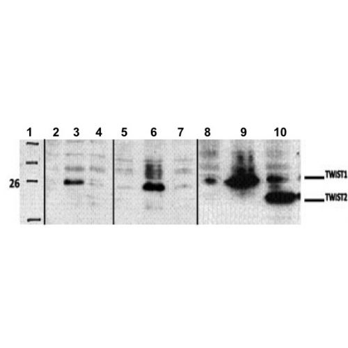 Twist-1 antibody (3E10)