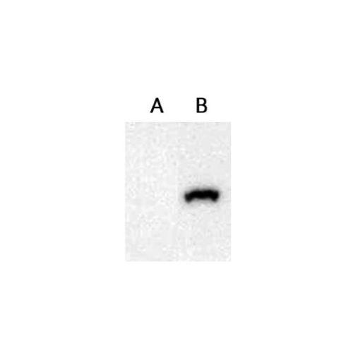 Secretory phospholipase A2 receptor (PLA2R) antibody
