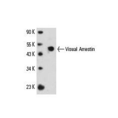 S-arrestin antibody (PDS-1)