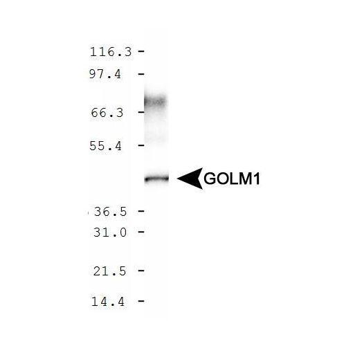 GOLM1 antibody