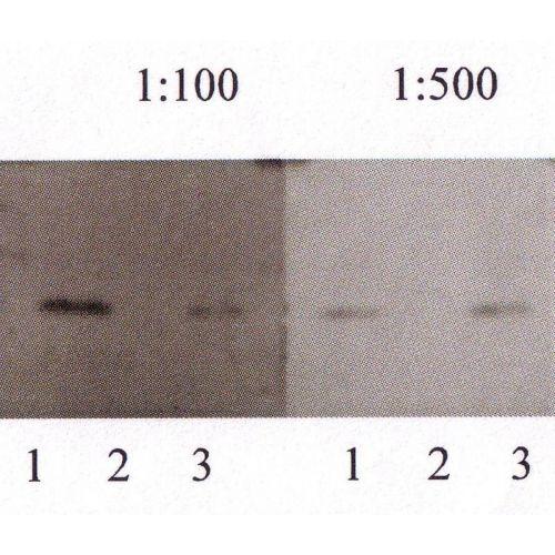 Amyloid beta protein 40 (Abeta 40) antibody