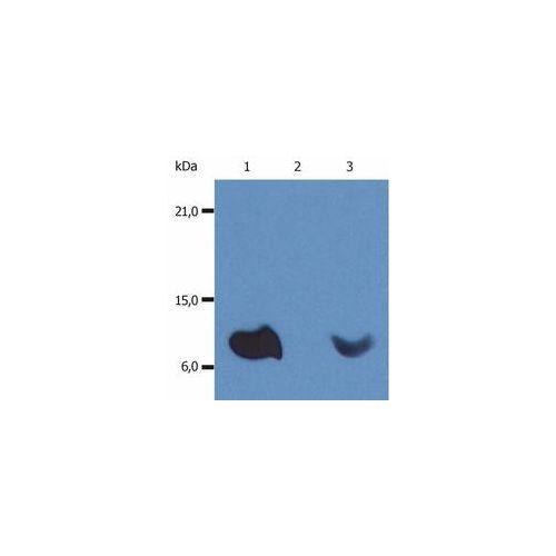 beta2-Microglobulin antibody (B2M-01) [HRP]