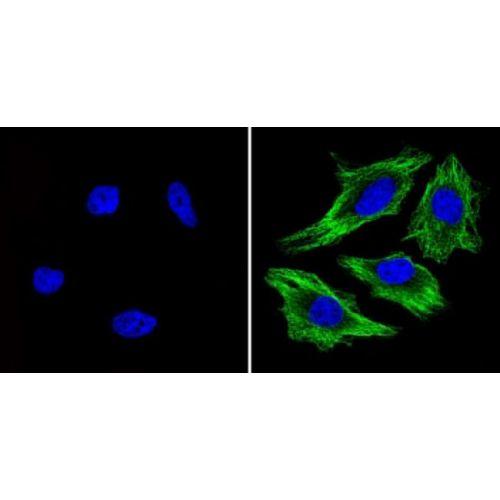Beta-tubulin antibody (BT7R)