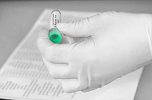 Identification of serum sample